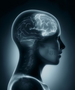 Accent Reduction and Frontal Lobe